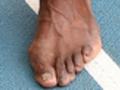 Ecco i piedi logorati di Usain Bolt